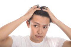 """10月20日は""""頭髪の日"""" 令和版薄毛の境界線発表! 薄毛認定ラインは「眉上7cm」"""